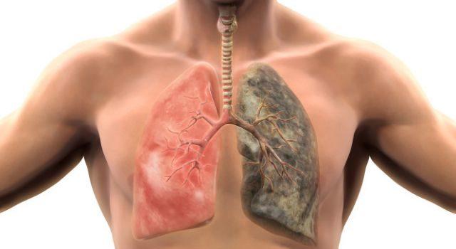 Τι είναι η χρόνια αποφρακτική πνευμονοπάθεια (ΧΑΠ)