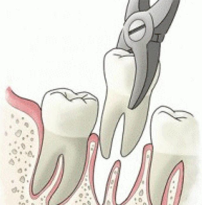 Οδηγίες μετά την εξαγωγή δοντιού