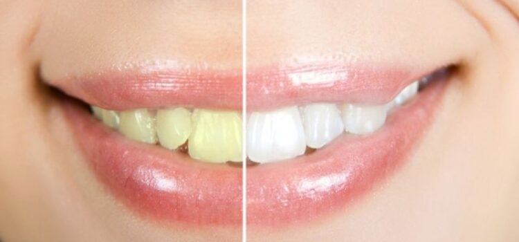Πώς μπορείτε να διατηρήσετε τα λευκά δόντια σας;