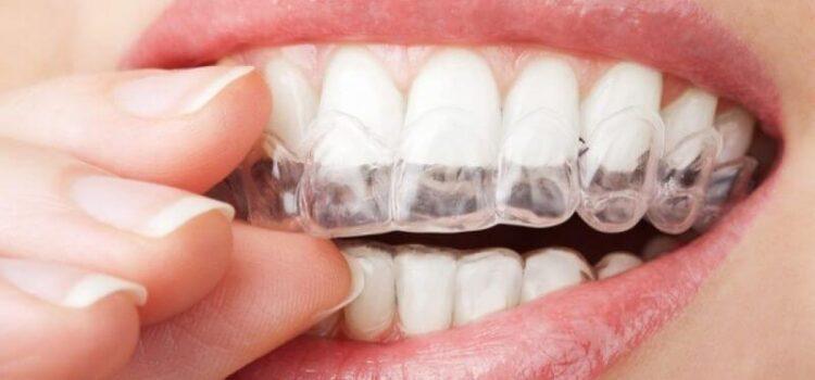 Προϊόντα λεύκανσης δοντιών – Ποια δουλεύουν και ποια όχι;