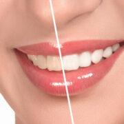 Τα μυστικά για όμορφα και λευκά δόντια