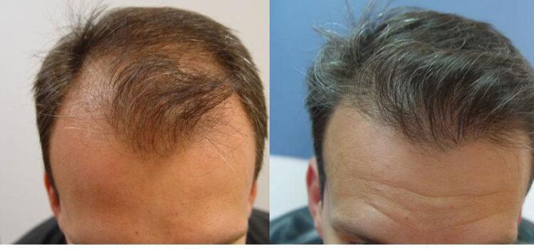 Ωφέλιμες πληροφορίες για τη μεταμόσχευση μαλλιών